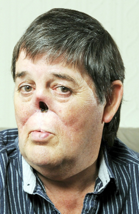 Lancashire nose man 'too scary for telly'