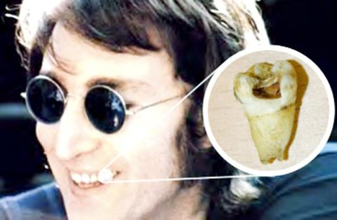 John Lennon's tooth will be in Chorley this week